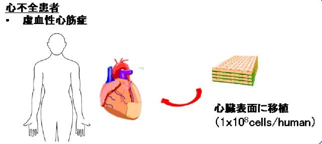 虚 血性 心筋 症
